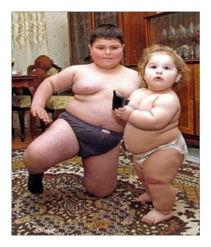 Mencegah Terjadinya Obesitas Pada Anak