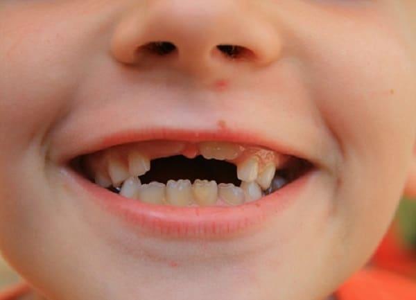 Menjaga Kesehatan Gigi Pada Anak-Anak