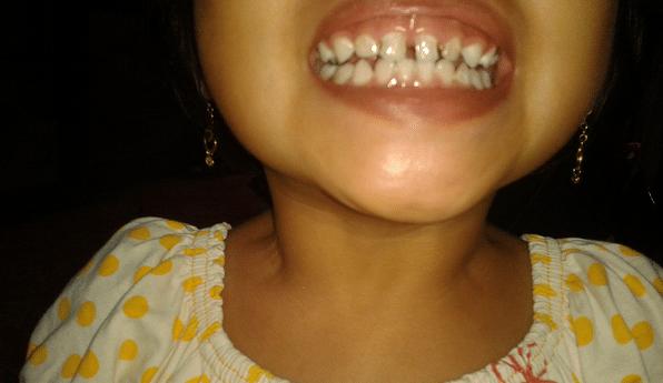 Kesehatan Gigi Anak Harus di Jaga Sedini Mungkin