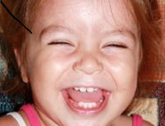 Hal-Hal Penting Dalam Pertumbuhan Gigi Bayi